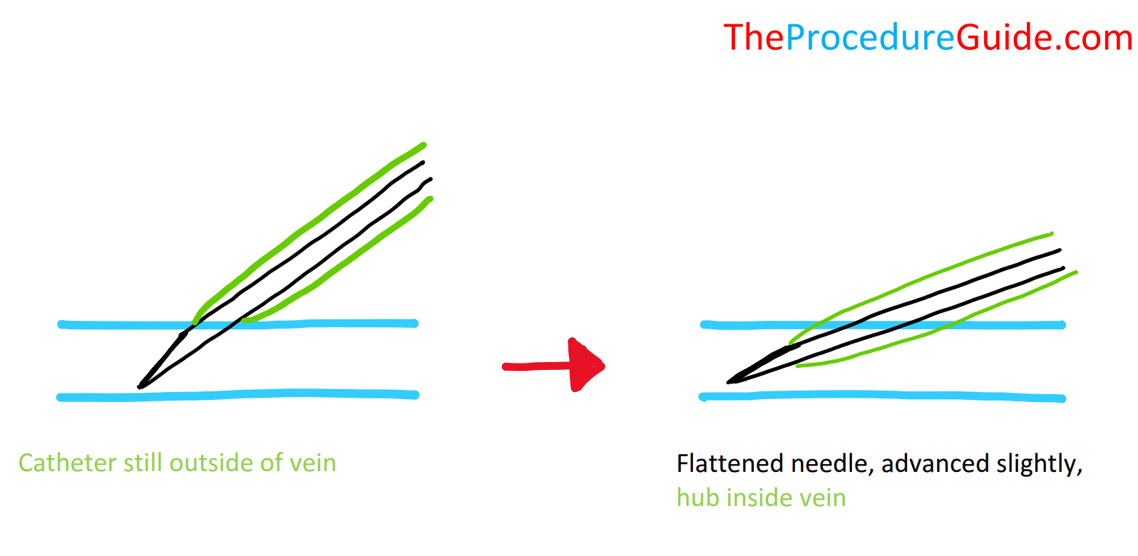 Peripheral IV insertion with needle tip and hub inside vein