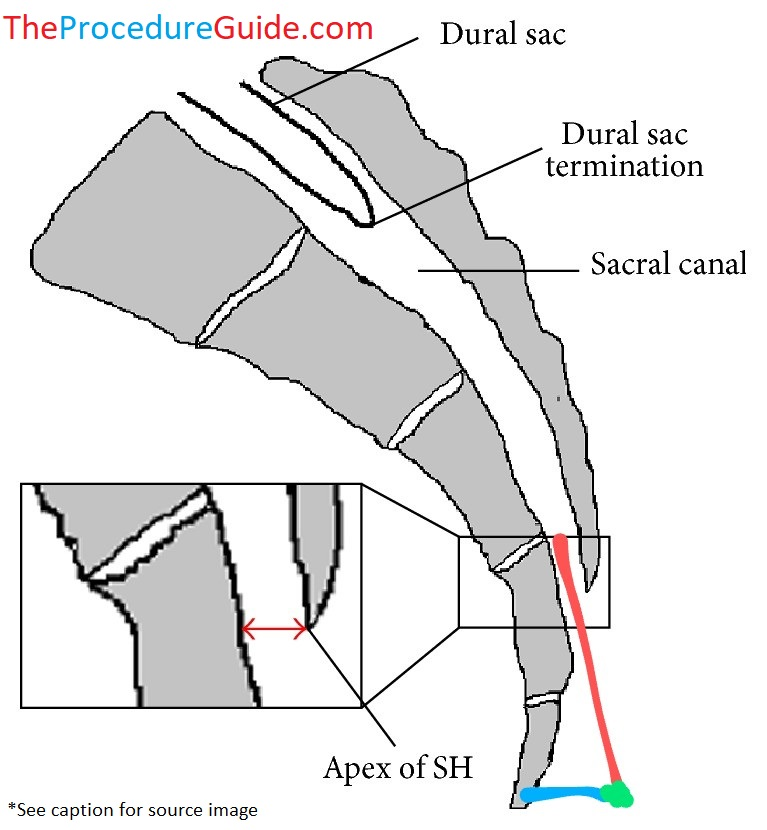 lateral caudal epidural steroid injection diagram