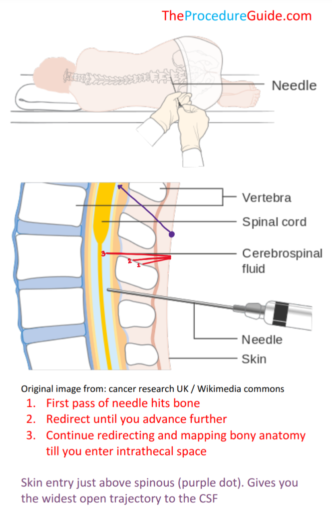 lumbar puncture diagram showing skin entry and trajectory