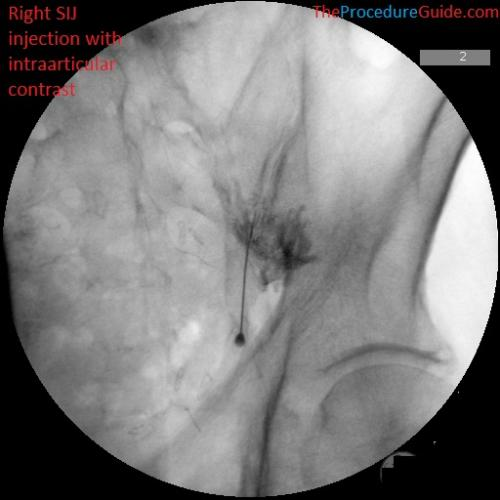Sacroiliac joint injection AP fluoroscopy with contrast